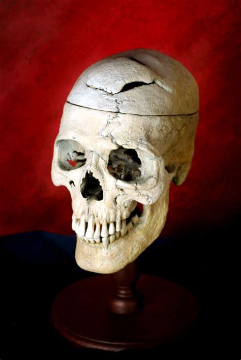 5 phineas gage accident brain injury pictures : Biological