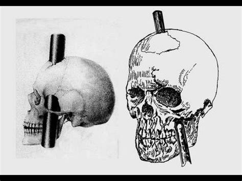 Stabbed in the Brain: Phineas Gage - YouTube