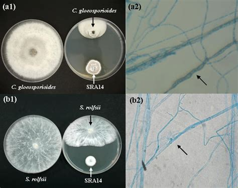 Antifungal Potential of Extracellular Metabolites Produced
