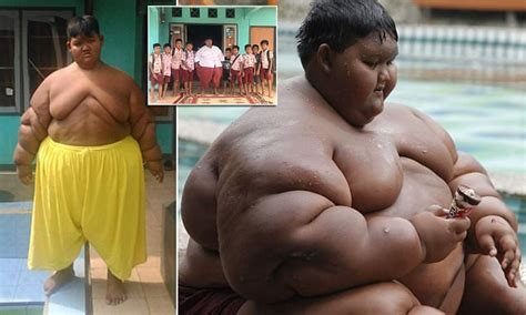 World's fattest child loses 5st after life-saving surgery