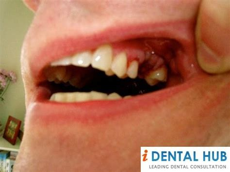 Dry socket occurs 3-5 days after the tooth extraction and